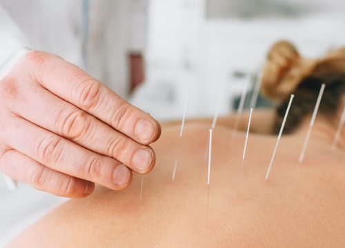 Acupuncture AT Cohen Medical Centers