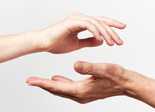 Hands suffering from Psoriatic Arthritis