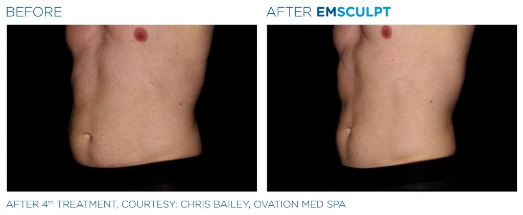 Before and after EMSCULPT results
